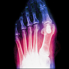 Jones Fracture and Metatarsal Fracture – Symptoms, Causes